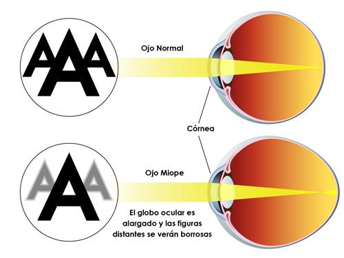 """2dd0eec516 La miopía es el error de refracción más conocido porque """"se hace notar"""" al  dificultar contundentemente la visión de lejos. Es un error de refracción  ..."""